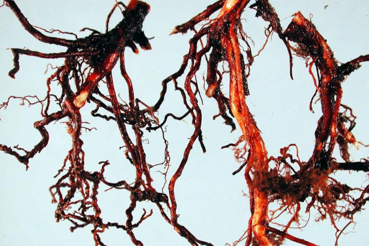 Фітофторна гниль коренів